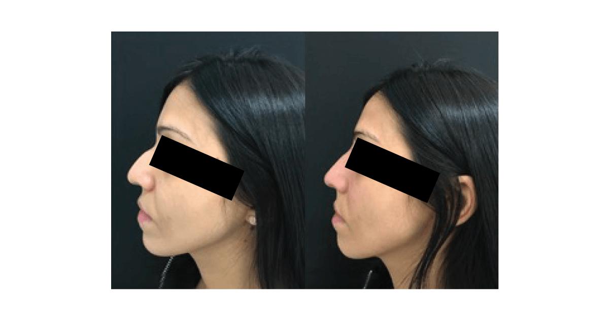 antes de depois de cirurgia estética ao nariz