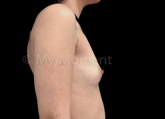 Mamoplastia - Aumento mamário para curvas de sonho