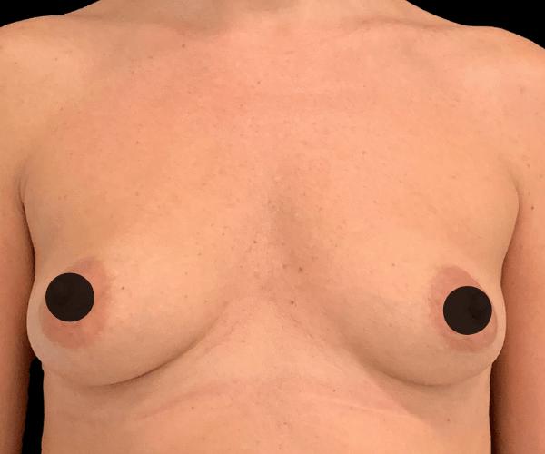 Aumento mamário, uma solução para o peito descaído