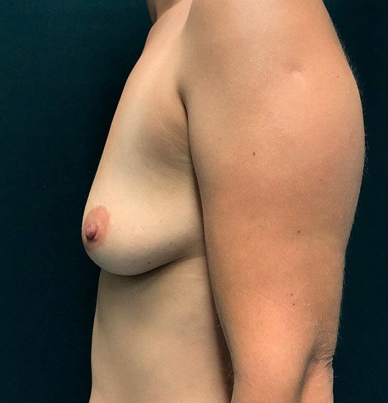 Aumento da Mama com Prótese