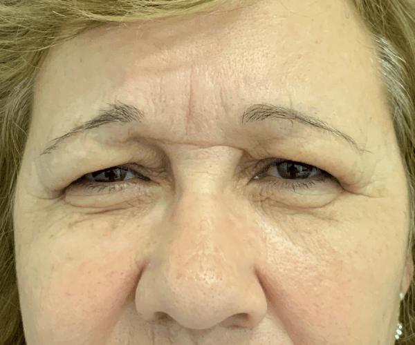 Um novo olhar, através da blefaroplastia!