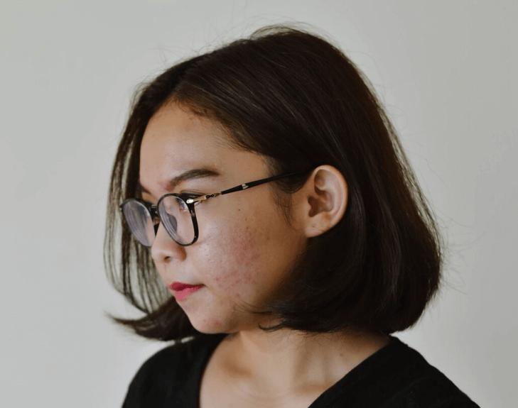 Acne; Menina com acne no rosto
