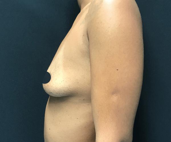 Mamoplastia com próteses diferentes para um peito simétrico