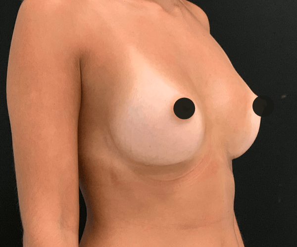 Mamoplastia de aumento com próteses anatómicas