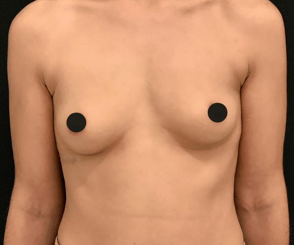 Tem dúvidas sobre a mamoplastia de aumento? A simulação 3D ajuda!