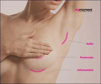 A mamoplastia de aumento e os tipos de cicatriz