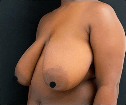 antes mamoplastia de redução