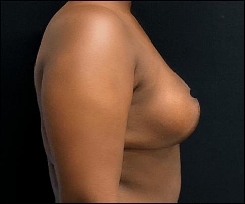 depois lateral mamoplastia de redução