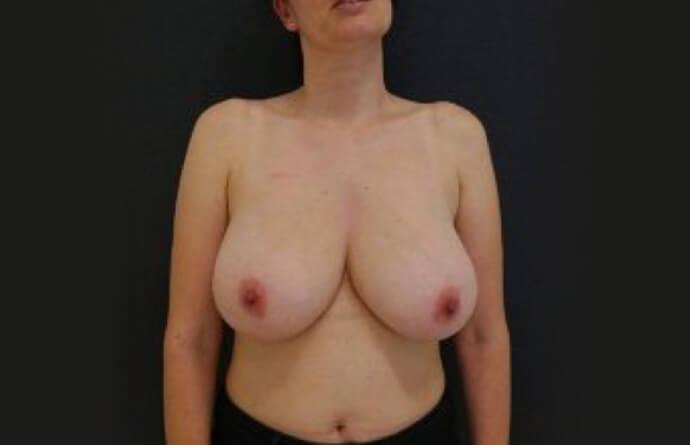 foto antes Mamoplastia de Redução na MyMoment