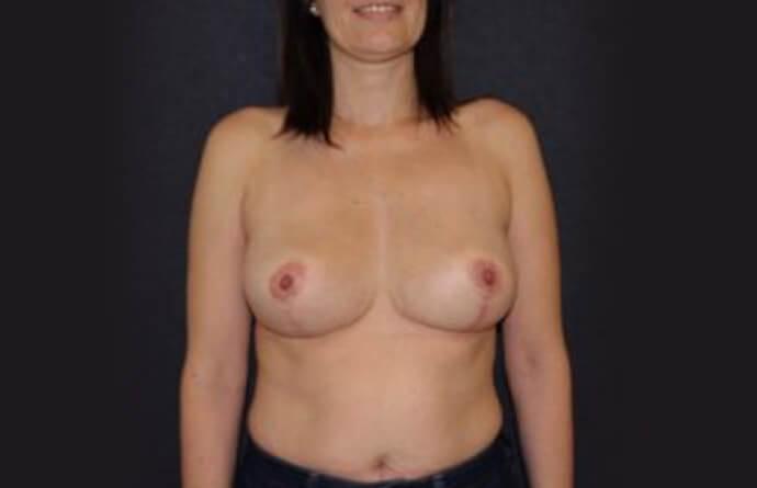 foto depois Mamoplastia de Redução na MyMoment