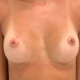 mamoplastia de aumento caso frente depois