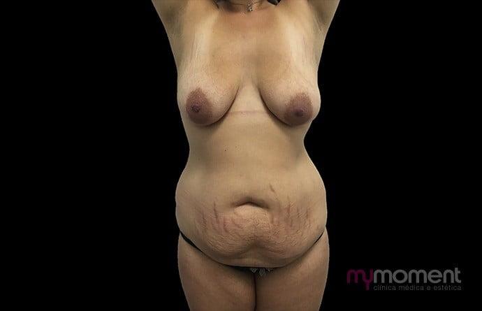 abdominoplastia caso antes
