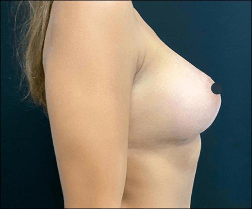 Mamoplastia de aumento há muito desejada