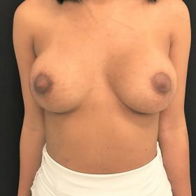 mamoplastia de aumento caso depois
