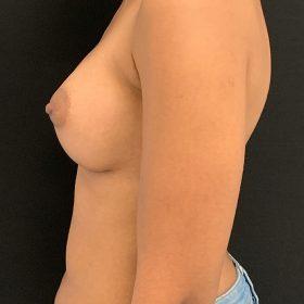 mamoplastia de aumento lateral caso deppois