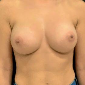 mamoplastia de aumento frente caso depois