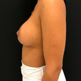 mamoplastia de aumento lateral caso depois