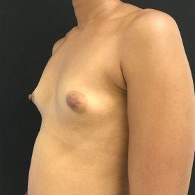 mamoplastia de aumento 45 graus caso antes