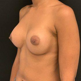 mamoplastia de aumento 45 graus caso depois