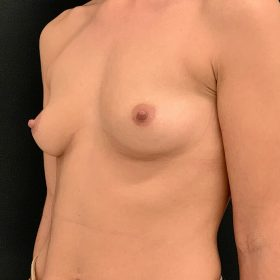 Mamoplastia Caso Antes