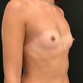 mamoplastia de aumento caso antes