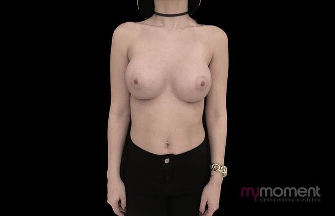 caso frente depois mamoplastia de aumento