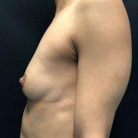 mamoplastia caso antes lateral