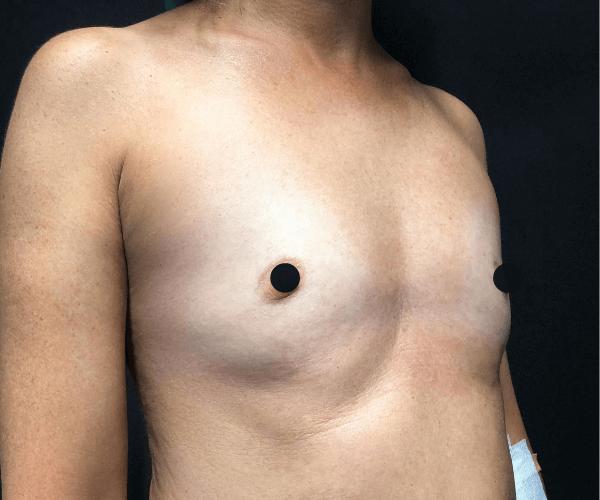 Mamoplastia de aumento depois dos 50 anos
