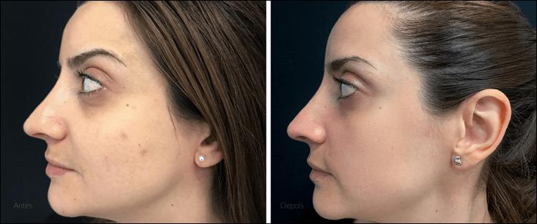 Resurfacing: rejuvenescer a pele aos 30 com Laser CO2