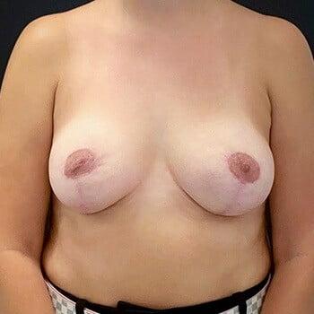 Mastopexia sem prótese - Levantamento do Peito