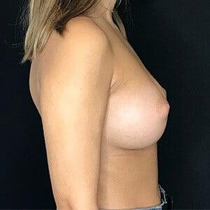 Casos Antes e Depois de Mamoplastia