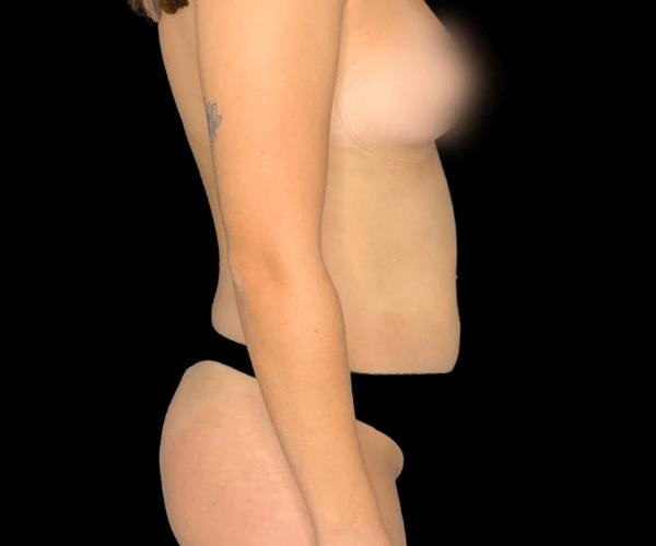 caso ana rita lipoaspiração lateral antes