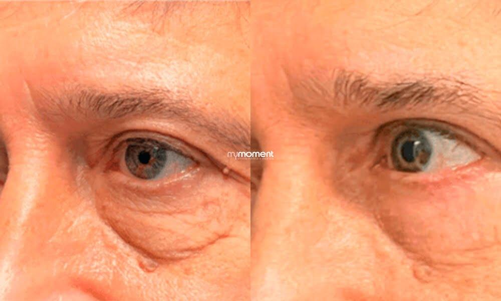 caso antes e depois blefaroplastia