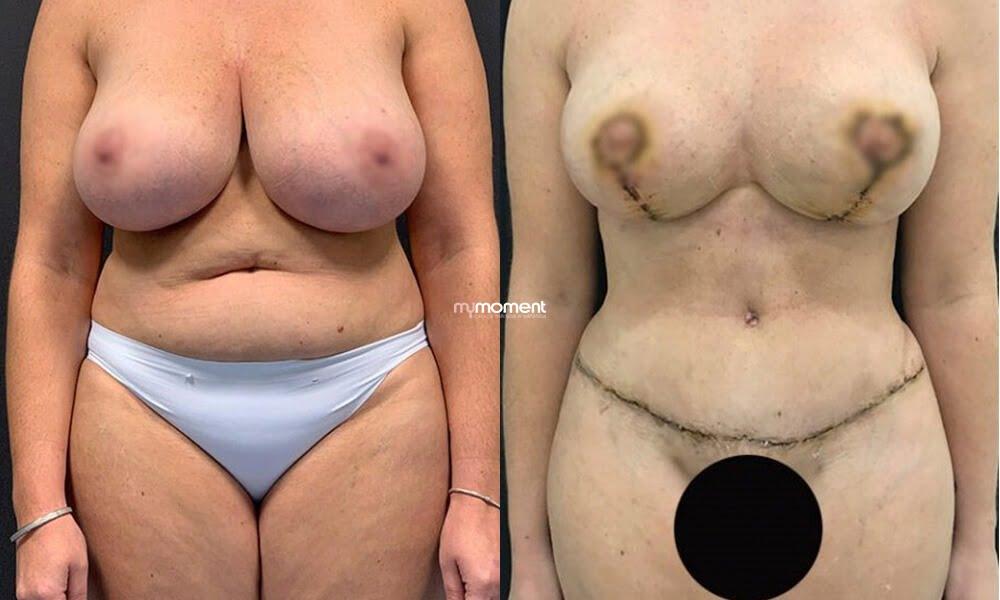 caso antes e depois mommy makeover