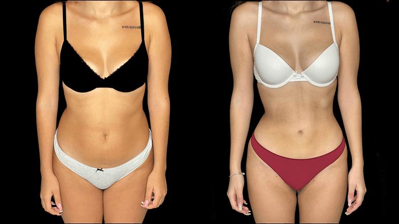 caso antes e depois frontal