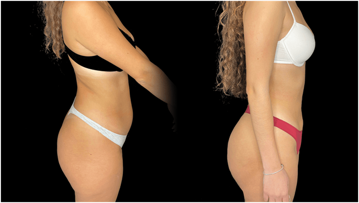 caso antes e depois lateral