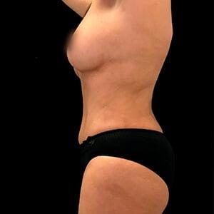 caso depois fatima lateral