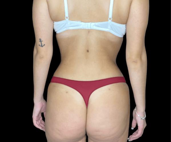 lipoaspiração jéssica caso depois costas