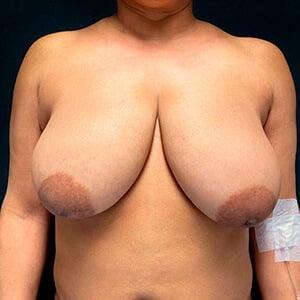 mamoplastia de redução caso antes frente