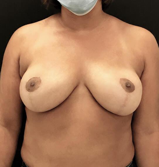 mamoplastia de redução caso depois frente