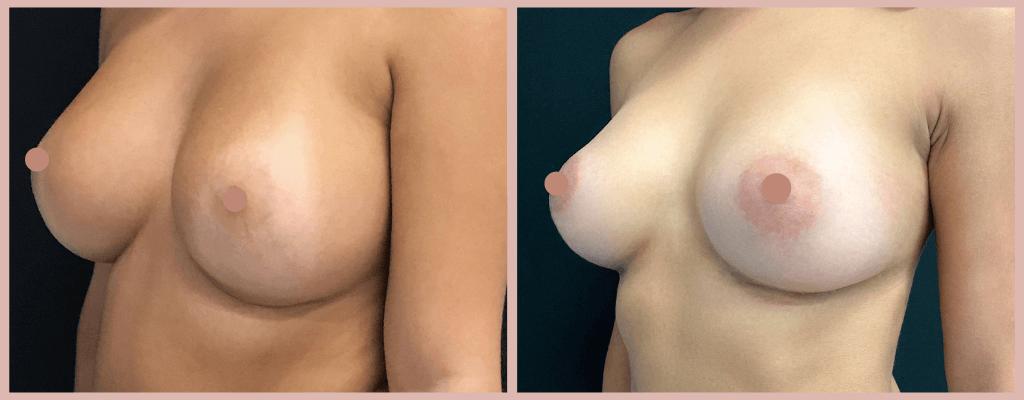 implante mamários