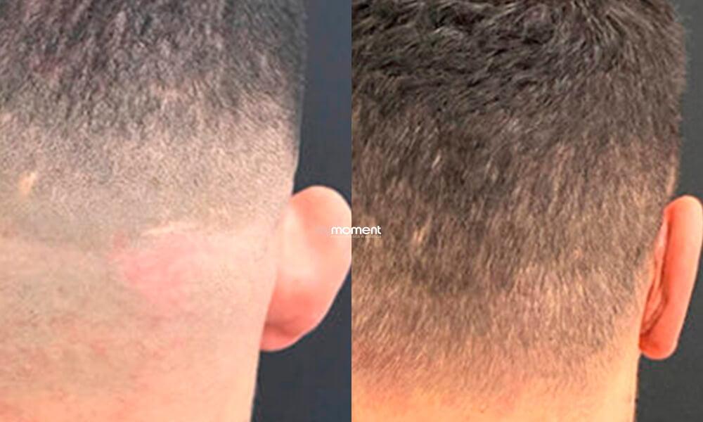 otoplastia caso antes e depois