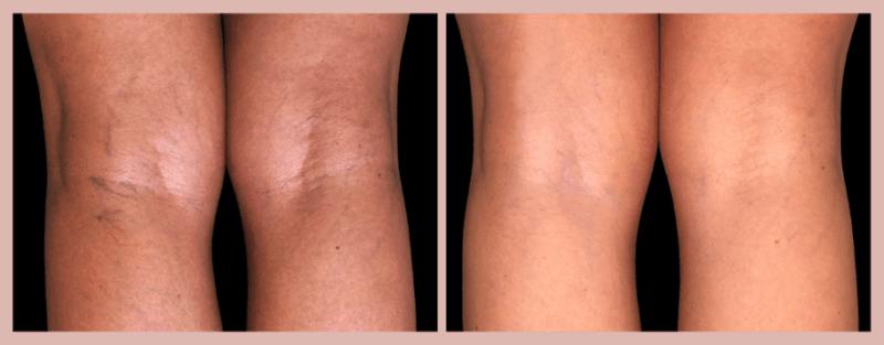 derrames nas pernas; antes e depois do tratamento